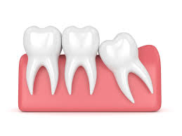 3rd molar