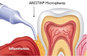arestin-procedure
