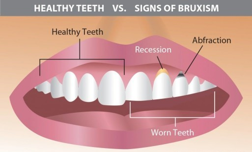 signs-of-bruxism
